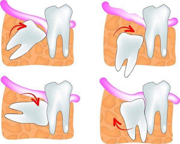 Nhổ răng khôn: An toàn - Không đau - Không biến chứng