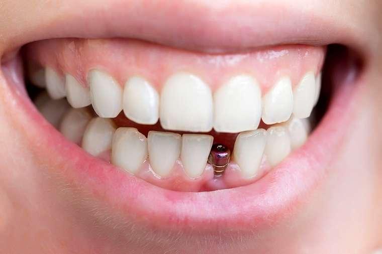 Trồng Răng Implant An toàn